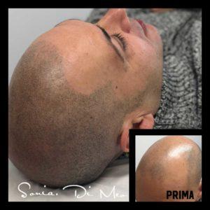 Tricopigmentazione Foto Effetto Rasato Naturale Risolto Problema Calvizie