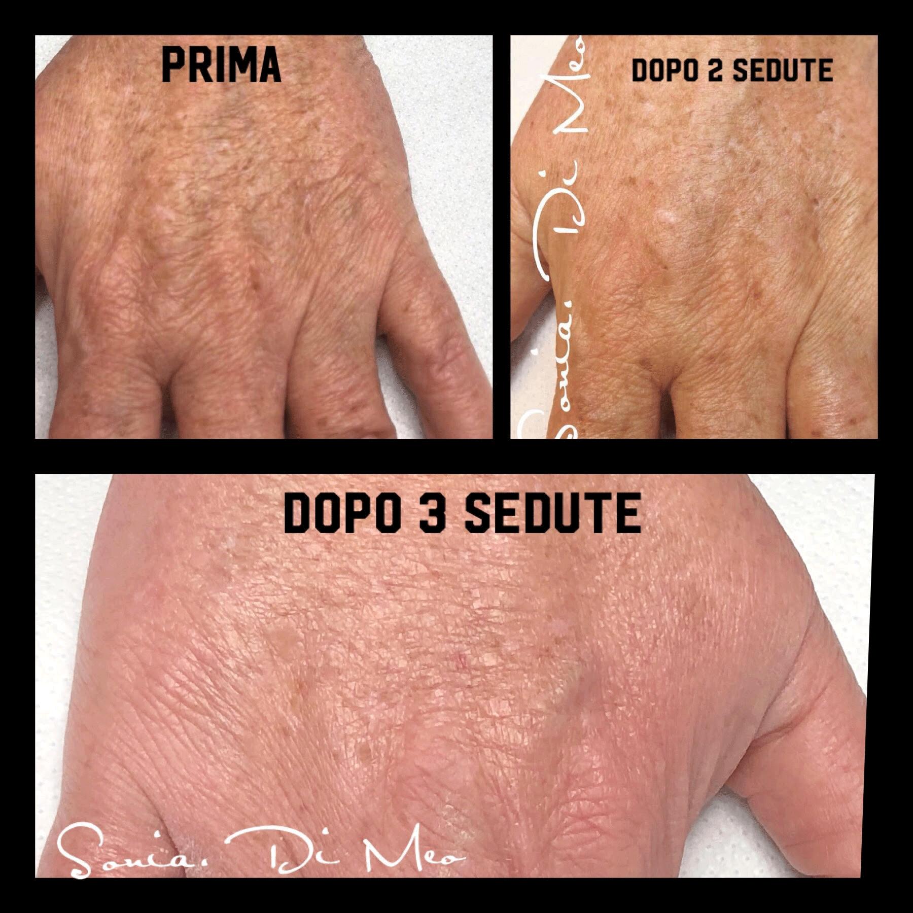 Needling Mani Prima e Dopo Anti rughe Anti aging effetto sorprendente