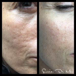 Needling Prima e Dopo Anti rughe Anti aging effetto sorprendente