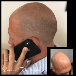 foto tricopigmentazione effetto rasato prima e dopo